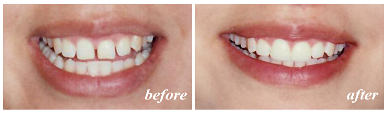 Cosmetic dentistry can makeover your smile with porcelain veneers.