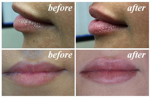 LipLase facial esthetics with Fotona LightWalker Laser.
