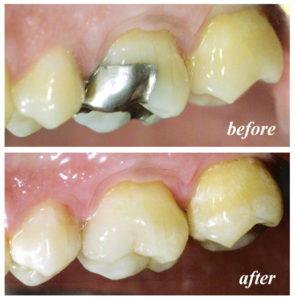 SMART Safe Mercury Amalgam Filling Removal Technique